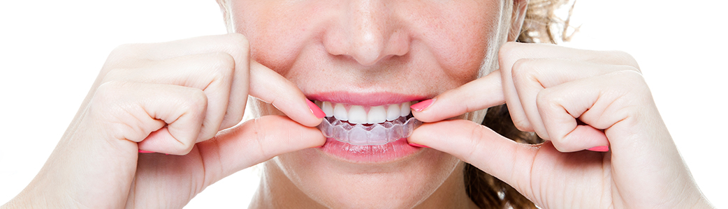 Orthodontics & Invisalign in SE Calgary